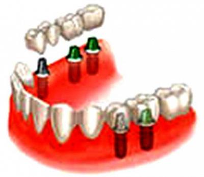 Имплантация зубов в химках цены